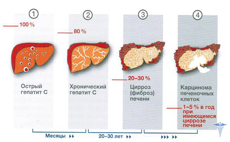 Диета и питание при гепатите СЦ: рецепты