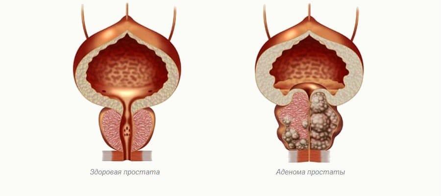 Гиперплазия предстательной железы что это такое