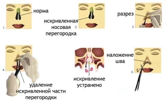 Вылез герпес на губе во время беременности